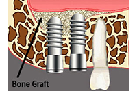 Bone Grafting & Sinus Lifts in Huntington Beach