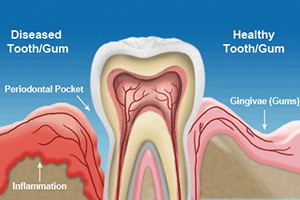 Cleanings & Gum Disease Treatment in Huntington Beach
