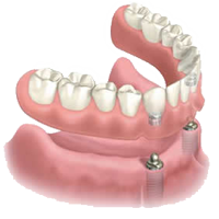 Solutions for Missing Teeth & Denture Wearers in Huntington Beach