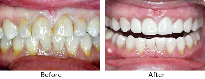 Porcelain Crowns - Smile Gallery