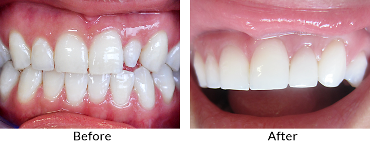 Porcelain Veneers - Smile Gallery