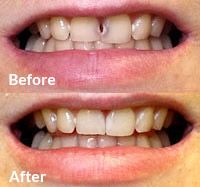 Porcelain Veneers - Dental Bonding