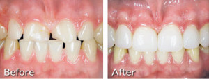 Cosmetic Dentistry - porcelain veneers