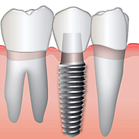 Dental Bridges in Huntington Beach