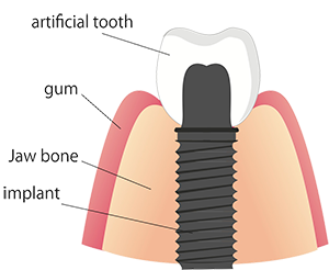 Dental Implant Services in Huntington Beach
