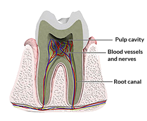 One-Visit Root Canal Therapy
