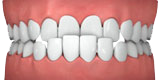 Invisalign® Clear Teeth Straightening in Huntington Beach